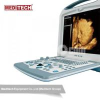 High quality Color Portable Ultrasound Scanner with Multi frequency convex probe